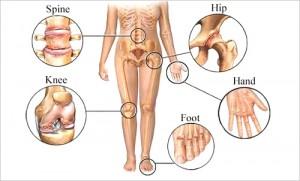 остеоартроз